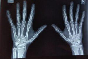 Закрытие зон роста костей