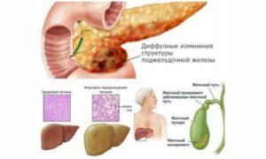 Хр. Холецистит. Диффузные изменения поджелудочной железы