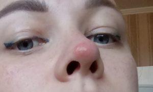 По середине носа появилось большое коричневое пятно