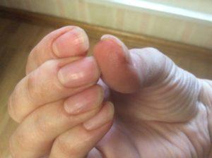 Слазит кожа под ногтями на руках, болит