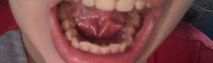 Появился прыщик под языком на уздечке