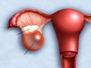 Увеличен правый яичник