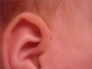 У ребенка пленка в ухе с отвертием посередине