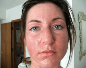 Стала резко жирной кожа лица, в чем может быть причина?