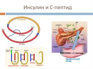 Низкий инсулин и с-пептид