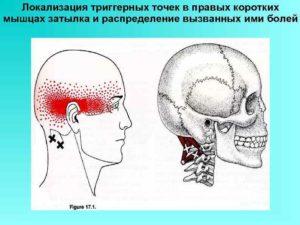 Болит лицо, глаз, висок и шея в основании черепа