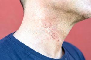 Раздражение кожи на шее и груди после бритья