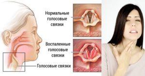 Чешется в горле в области языка и ухо