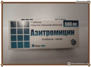 Антибиотики не помогают при гайморите