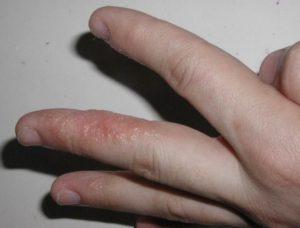 Волдырь на пальце болит