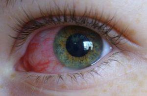 Кровоизлияние в глазу после укола