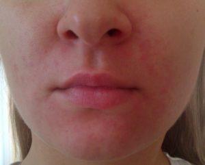Шелушение кожи возле носа, подбородок