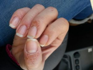 Зуд и покраснение кожи вокруг ногтя