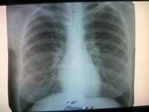 Расшифровка рентгена легких онлайн