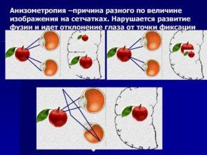 Анизометропия у ребенка