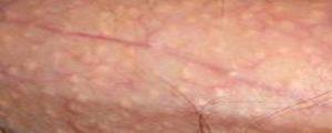 Сухая кожа головки полового члена после тридерма, проблемы с потенцией