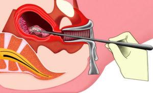 Чистка матки при маточном кровотечении