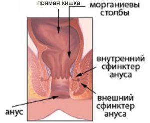 Спазм анального сфинктера