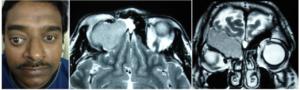Видно ли на МРТ мозга пазухи носа и возле уха