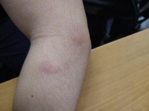 Волдыри похожие на комариные укусы