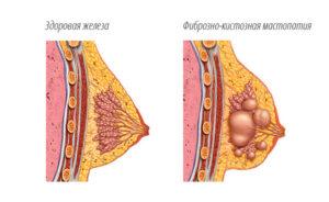 Обострение мастопатии