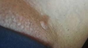 Внутренние прыщи на больших половых губах