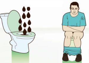 Жидкий стул 3 дня после клизмы