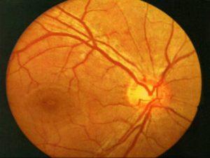 Ангиопатия сетчатки с ангиосклерозом артерий