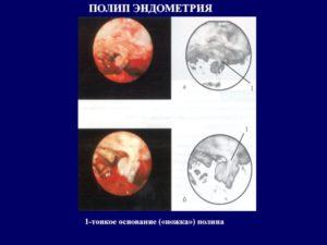 Эндометриальный полип без атипии