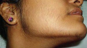 Повышенный рост волос на подбородке у женщин