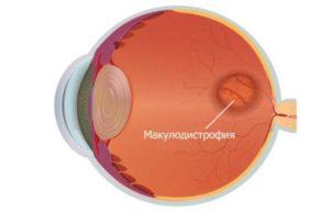 Дегенерация макулы и заднего полюса глаза