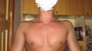 Асимметрия грудных мышц у мальчика