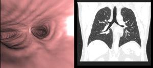 КТ или бронхоскопия