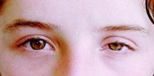 Один глаз стал выше и на много уже второго