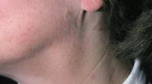 Лимфаденопатия с признаками липоматоза