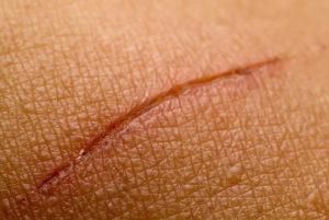 Покраснела заживающая рана