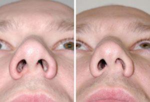 Плохо дышит нос после операции