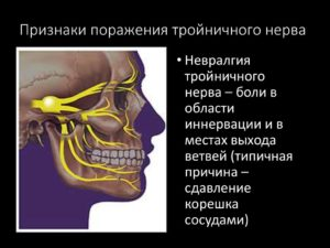 Данные симптомы могут указывать на невралгию тройничного нерва?