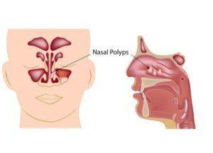Заложенность носа по утрам с одной стороны