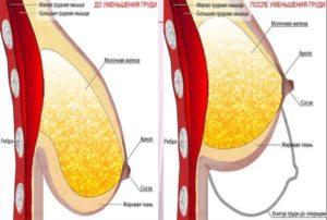Уменьшение груди после ГВ