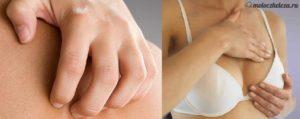 Зуд в области груди и сосков