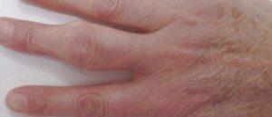 Чешутся пальцы рук, опухли и болят суставы