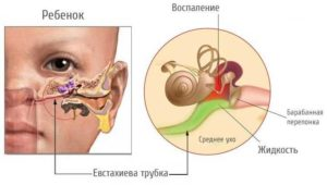Сопли через уши