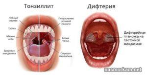 Боль в горле в одном точке, жёлтые пятна
