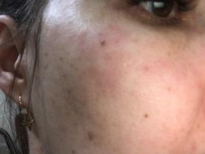 Покраснение на лице после посещения бани