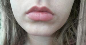 Припухлость под нижней губой
