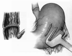 Танталовые швы и фиброзный тяж