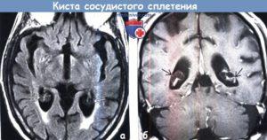 Киста сосудистого сплетения головного мозга
