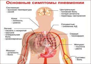 Озноб после пневмонии, в течении дня скачет температура! Что делать?