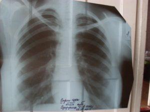 Рентген лёгких расшифровка